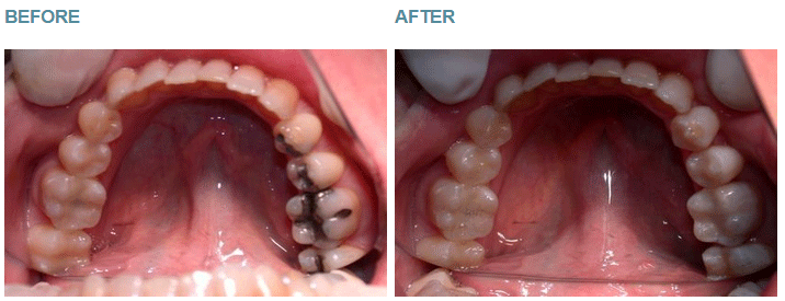 Safe Amalgam Removal - Case 3
