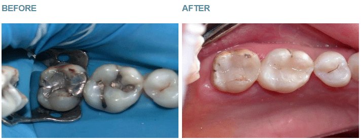 Safe Amalgam Removal - Case 4